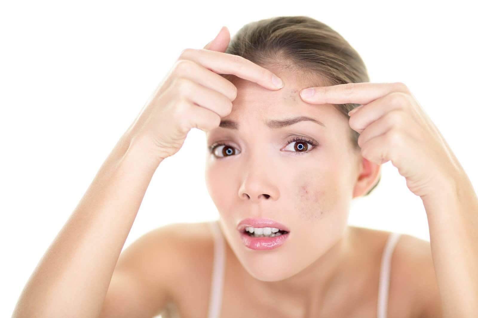 Natural Products To Get Rid Of Dark Spots