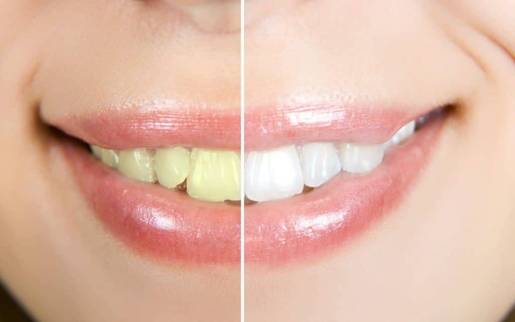 Whitening Techniques
