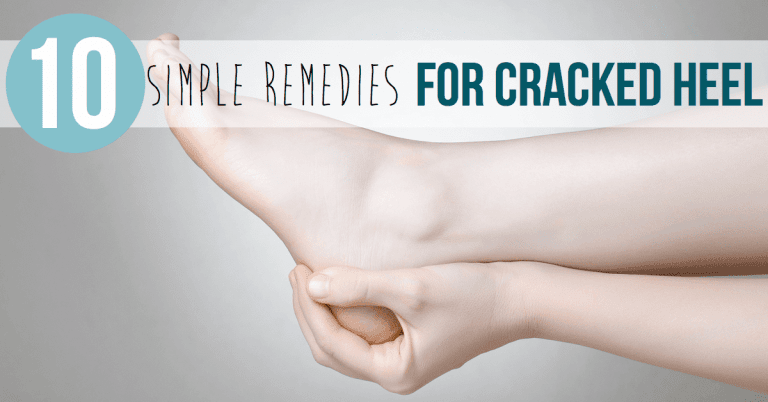 remedies for cracked heel