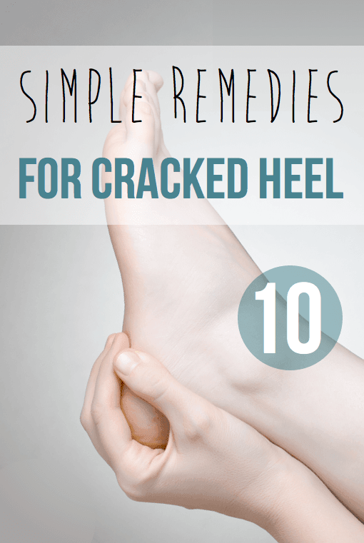 10 Simple Remedies for cracked heel