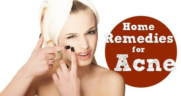 Natural Cures for Acne that Will Make Those Ugly Spots Disappear in 3 Days