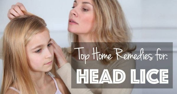 Top Home Remedies for Head Lice