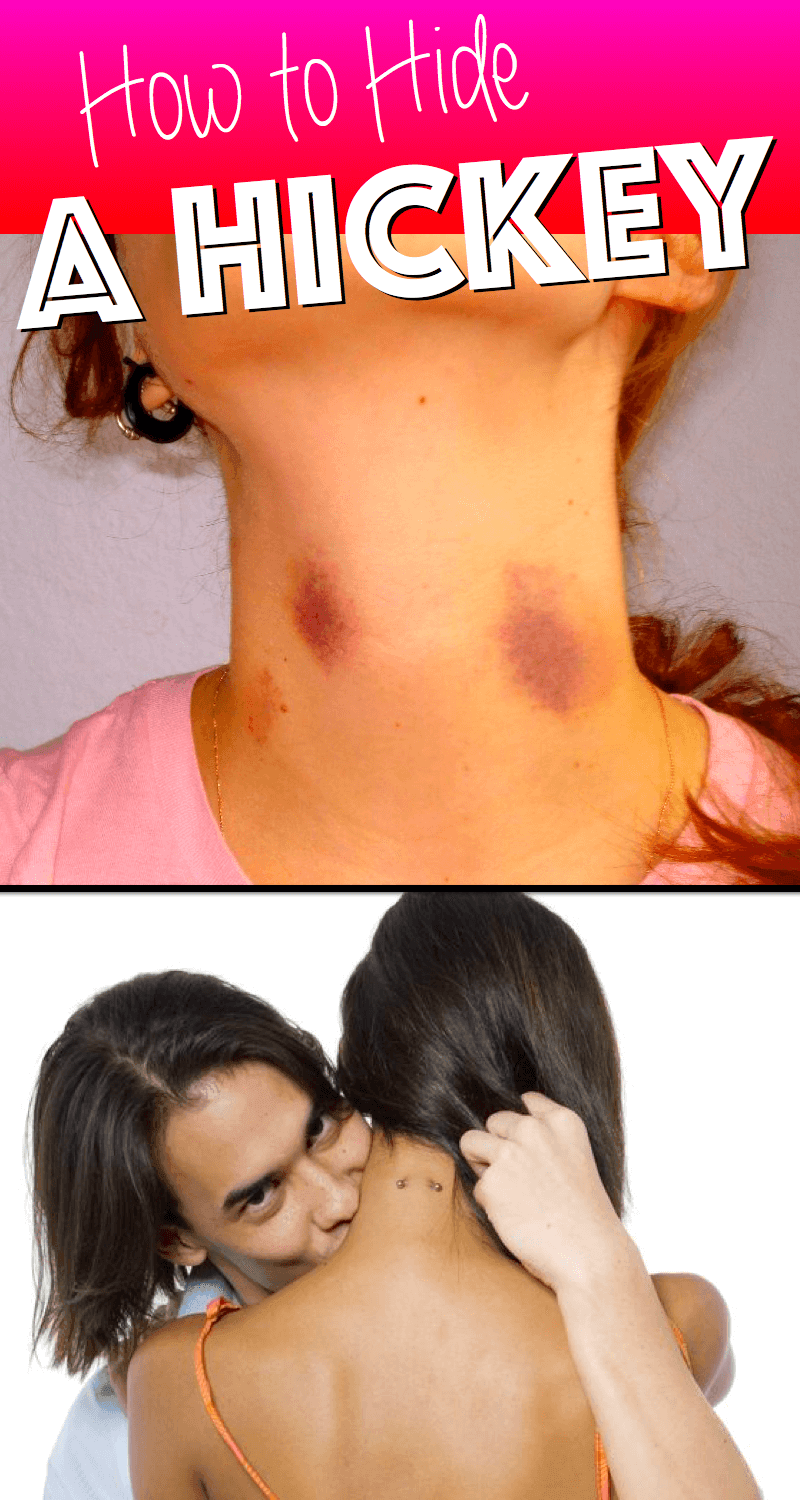 how to hide hickeys quickly